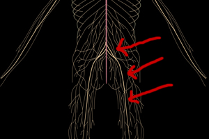 Sciatica, what You Must Know…